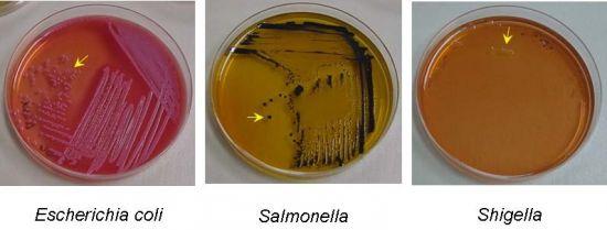 Возбудители кишечных инфекций