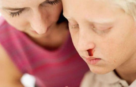 Носовое кровотечение у мальчика