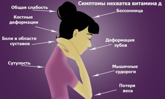 Симптомы гиповитаминоза Д