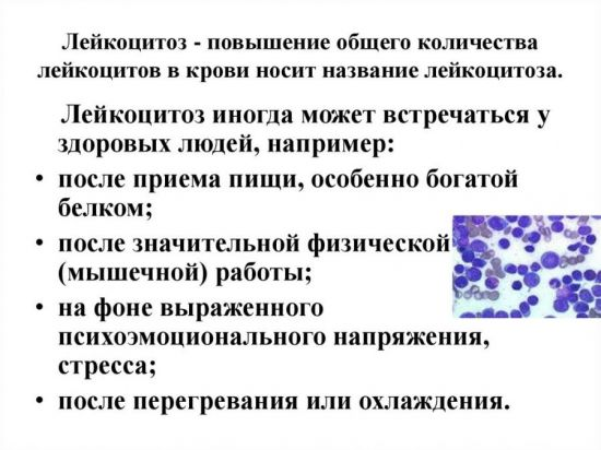 Физиологический лейкоцитоз