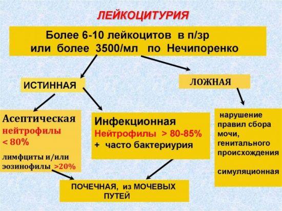 Лейкоцитурия