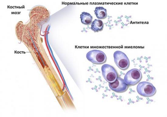 Плазменные клетки в крови норма thumbnail