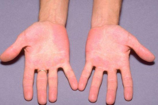 Симптомы высокого гемоглобина