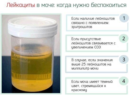Опасность лейкоцитурии