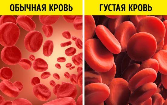 Обычная и густая кровь