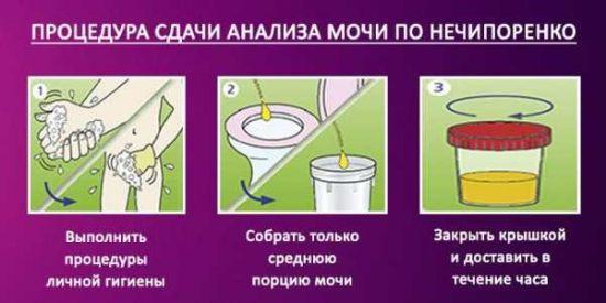 Как собрать мочу на Нечипоренко