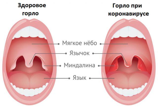 Горло при коронавирусе