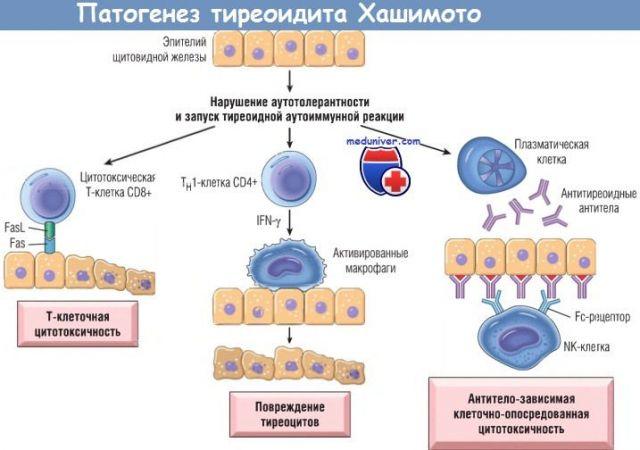 Развитие тиреоидита Хашимото