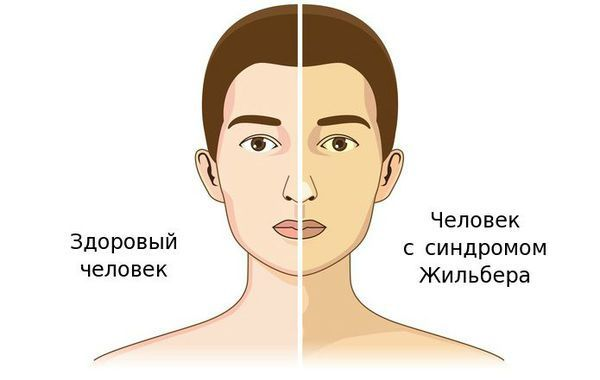 Вид человека с синдромом Жильбера