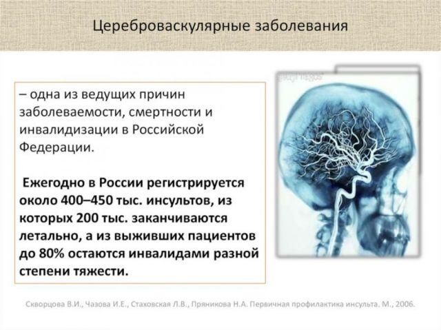 Цереброваскулярные заболевания