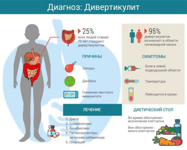 Причины, симптомы, лечение дивертикулита