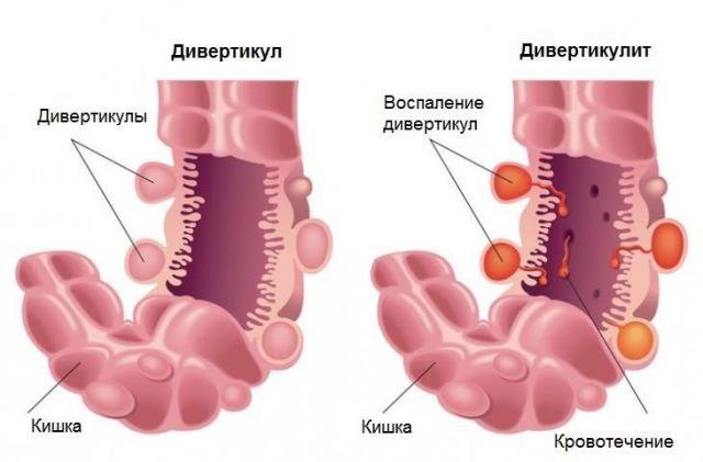 Дивертикулы кишечника