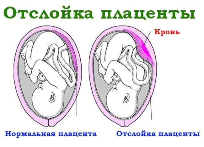 Отслойка плаценты