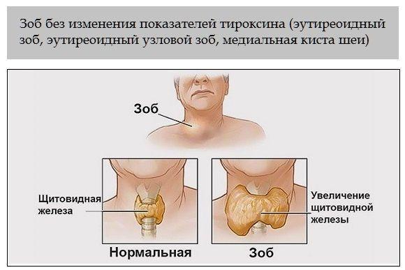 Зоб щитовидки