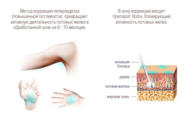 Ботокс и потовые железы