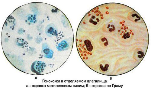 Гонококки под микроскопом