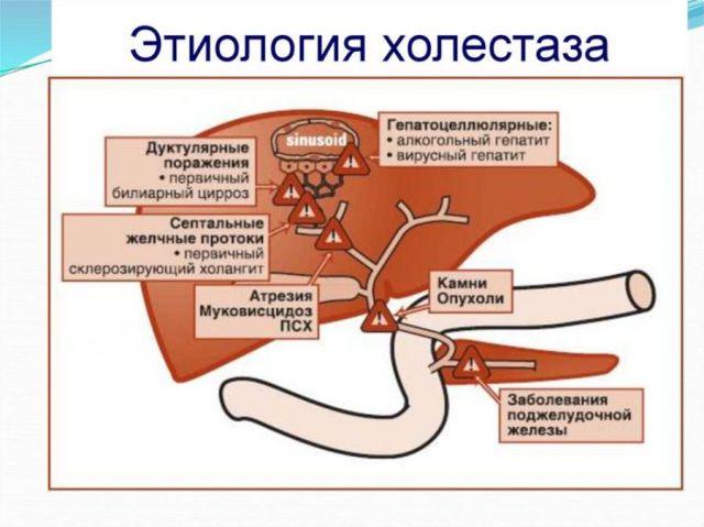 Развитие холестаза
