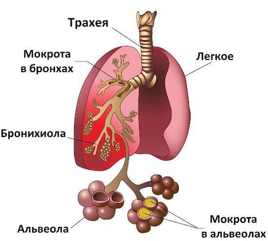 Мокрота в легких и альвеолах
