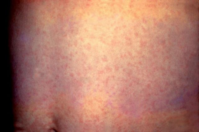 Высыпания при коронавирусе по типу обморожения