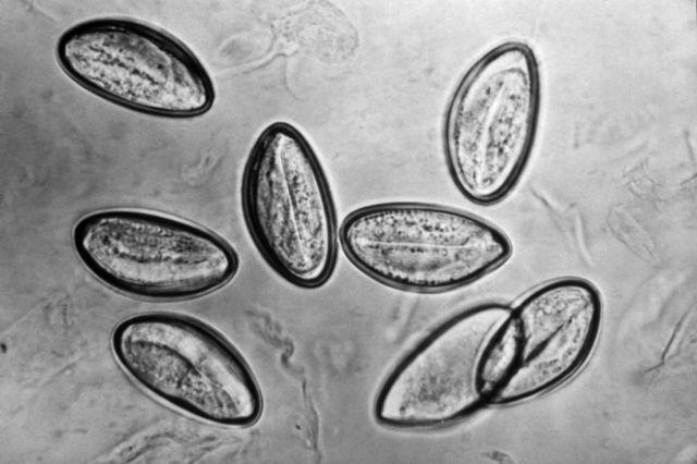 Яйца остриц под микроскопом