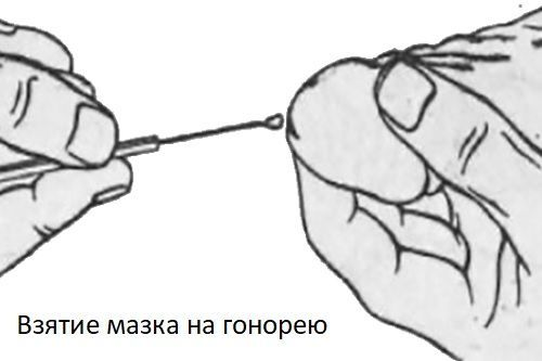 Взятие мазка на гонорею