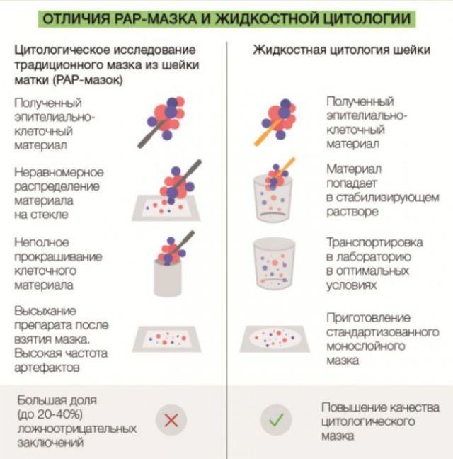 Отличия ПАП-мазка и жидкостной цитологии