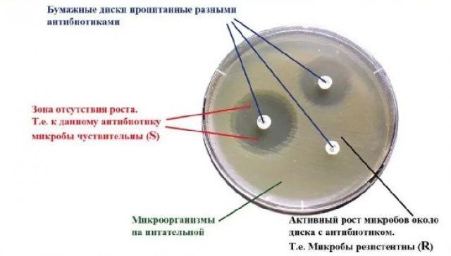 Антибиотикограмма. Метод бумажных дисков