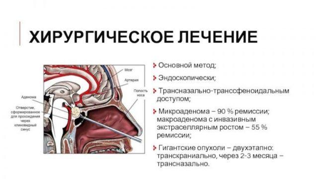Удаление аденомы