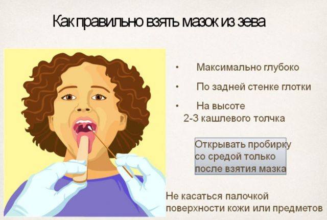 Как взять мазок из зева