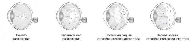 Отслоение стекловидного тела