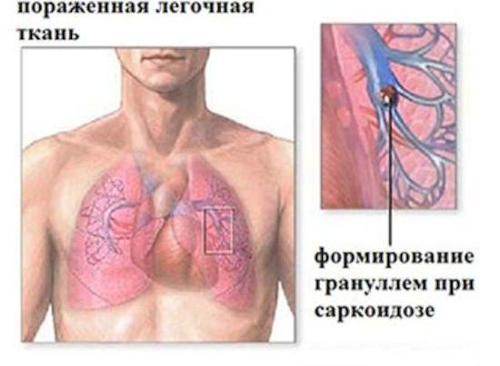 Гранулемы при саркоидозе