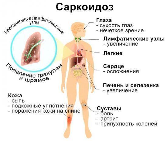 Признаки саркоидоза