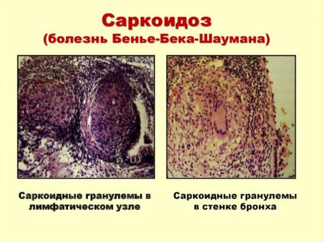 Саркоидные гранулемы в бронхе