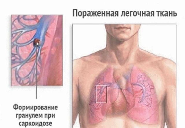Гранулема в легких