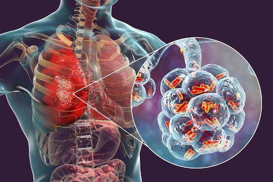 Вирус в легких