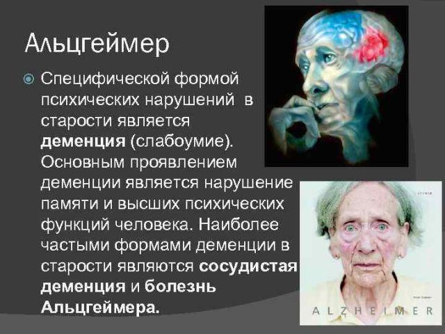 Об Альцгеймере
