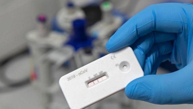 Экспресс-тест на коронавирус