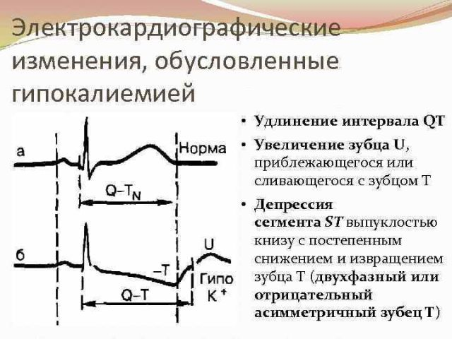 Дефицит калия влияет на кардиограмму