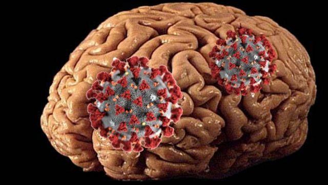 Влияние коронавируса на головной мозг