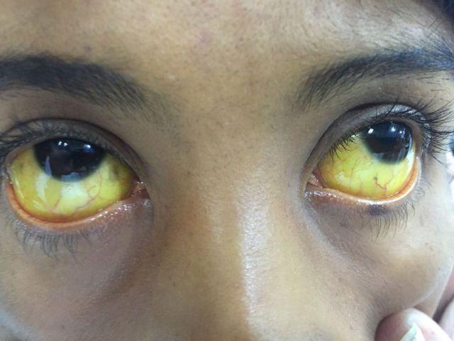Желтые зоачки глаз