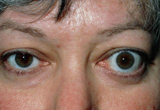 Глаза человека с симптомом Грефе