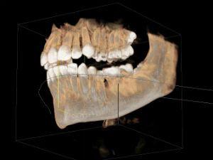 Зубы и нижняя челюсть