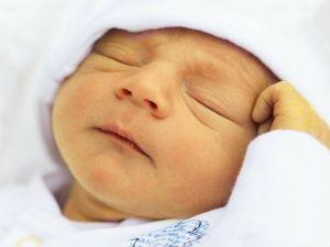 Желтушность кожи у новорожденного