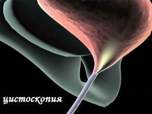 Как проходит цистоскопия 5