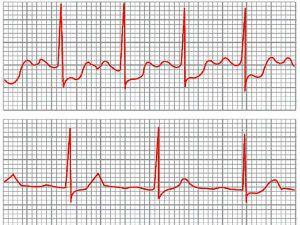 Стенокардия на кардиограмме