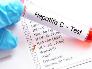 Анализ крови на HCV