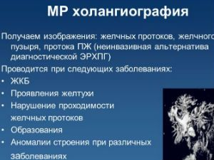 МРТ–холангиография