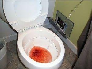 Следы крови в моче у мужчин 12