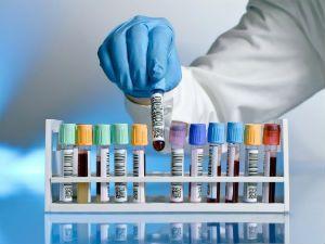Анализ крови из вены
