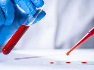 Анализирование крови